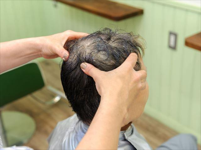 最近抜け毛が多いのはagaのせいかも?agaの原因3選