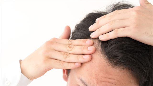 薄毛が気になりだしたらすぐに始めるべし!正しいAGA対策